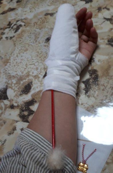 指を切ったら整形外科でいいらしい。【生まれて初めて縫われました】